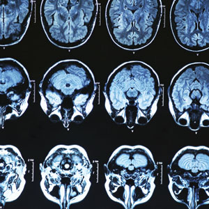MRI Services in Houston, TX with Synergy Radiology Associates
