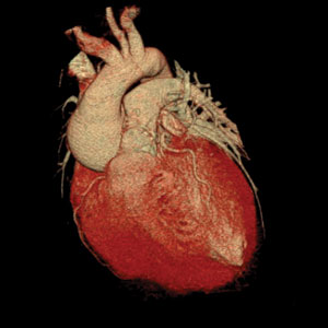 3D CT scan of heart